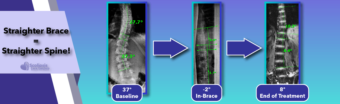 The straighter the brace the straighter the spine after treatment