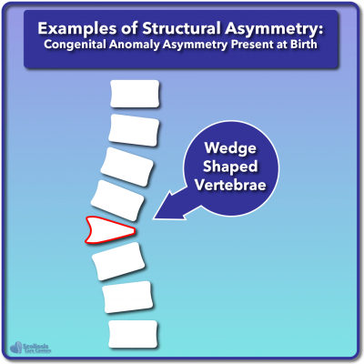 Example of congenital wedged vertebrae structural asymmetry