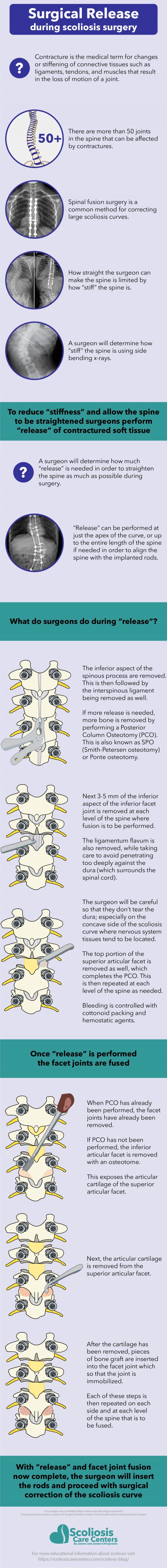 Infographic detailing surgical release of contractured soft tissue and facet joint fusion during scoliosis spinal fusion surgery