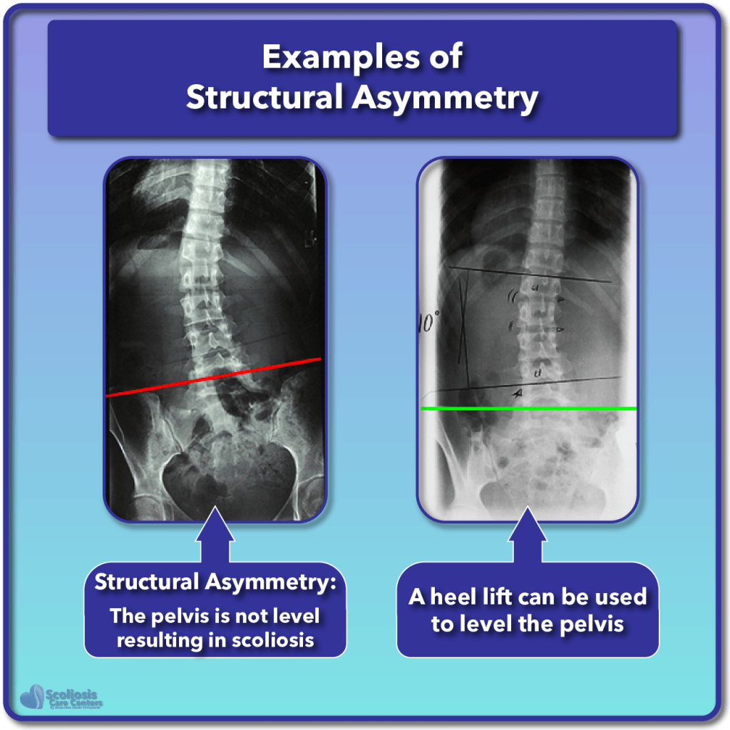 What Is Scoliosis Scoliosis Defined Its Causes