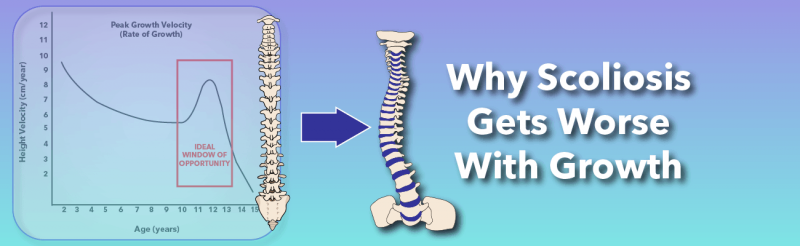 Why Does Scoliosis Get Worse With Growth?