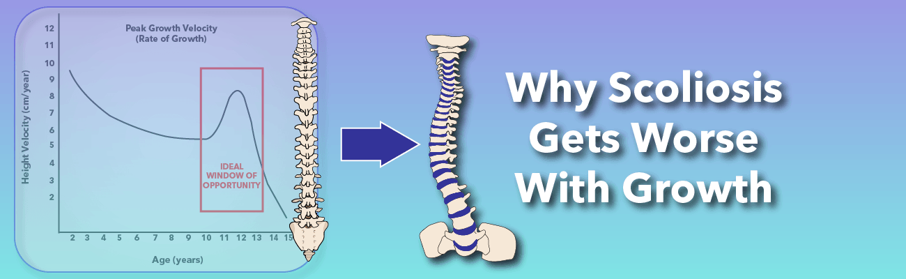 Why scoliosis gets worse with growth banner